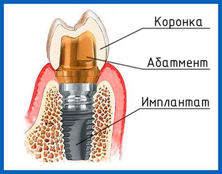 Implantat mit Krone