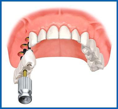 Implantatpackung