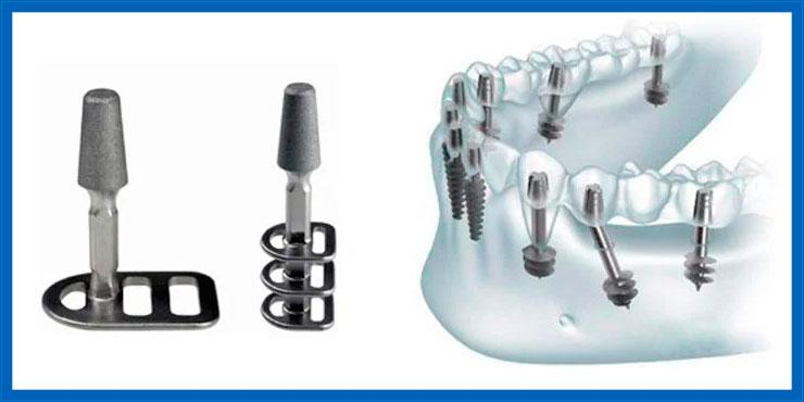 Kombinierte Implantate