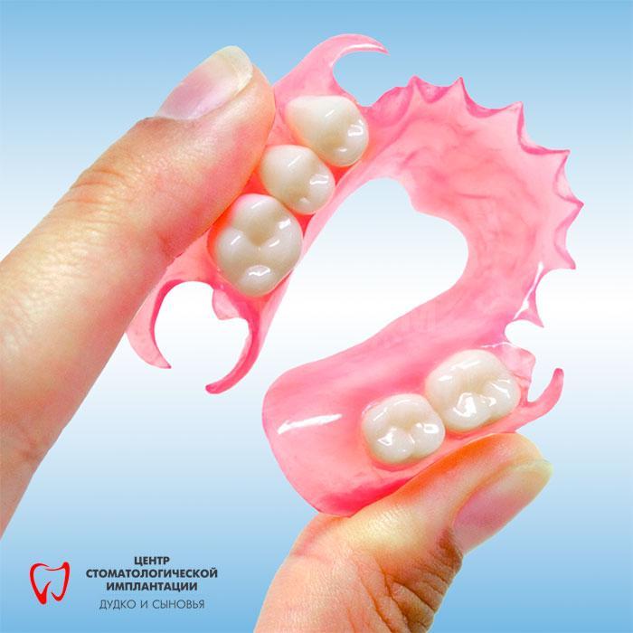 Nylon dentures in Minsk