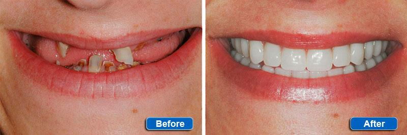 Basal implantation of teeth in Minsk: Before - After