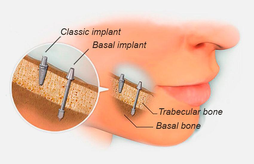 Basal implantation of teeth