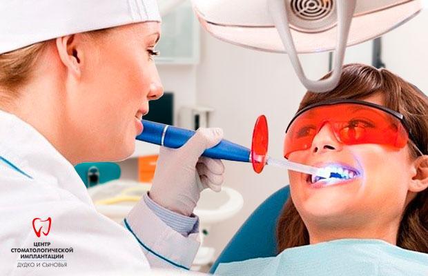Wybielanie zębów w klinice Dudko and Sons