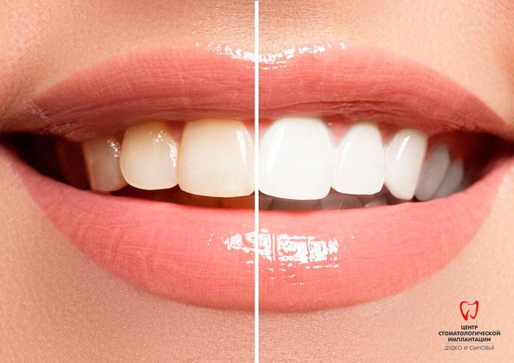 Czym różnią się zęby przed i po wybielaniu w Mińsku