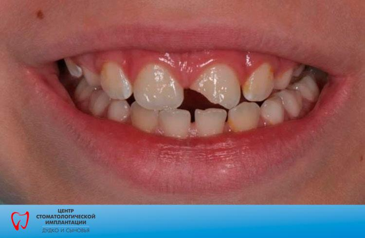 tooth injuries in children