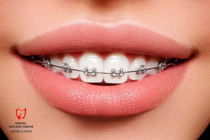 Bracket systems in dentistry