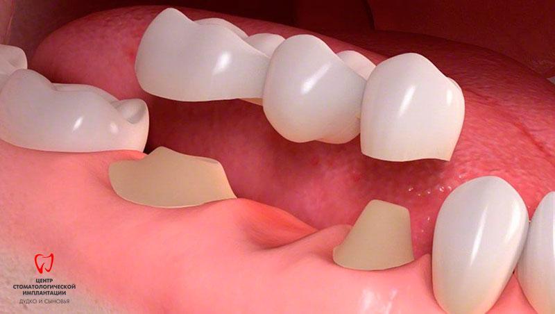 Dentures for teeth in Minsk
