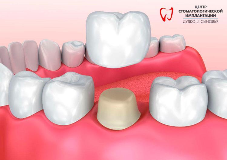 crowns for teeth in Belarus