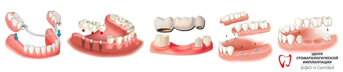 Types of prosthetics in the clinic Dudko and sons. In our dentistry, such types of dentures are installed as: clasp and nylon dentures, crowns, veneers, bridges and beams
