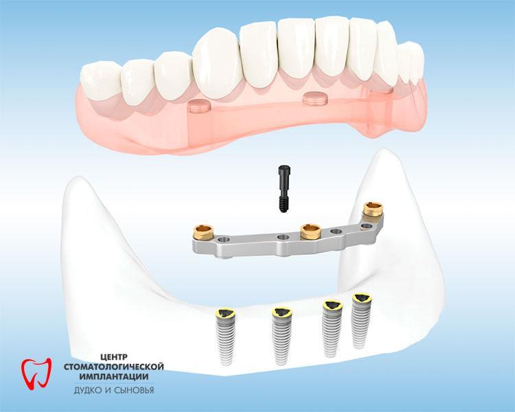 Beam prostheses on dental implants in Belarus