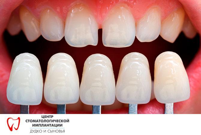 Veneers for teeth in Minsk