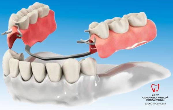 Clasp dentures in Minsk