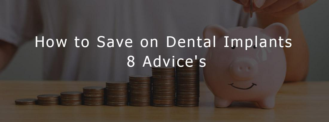 How to Save on Dental Implants - 8 Advice