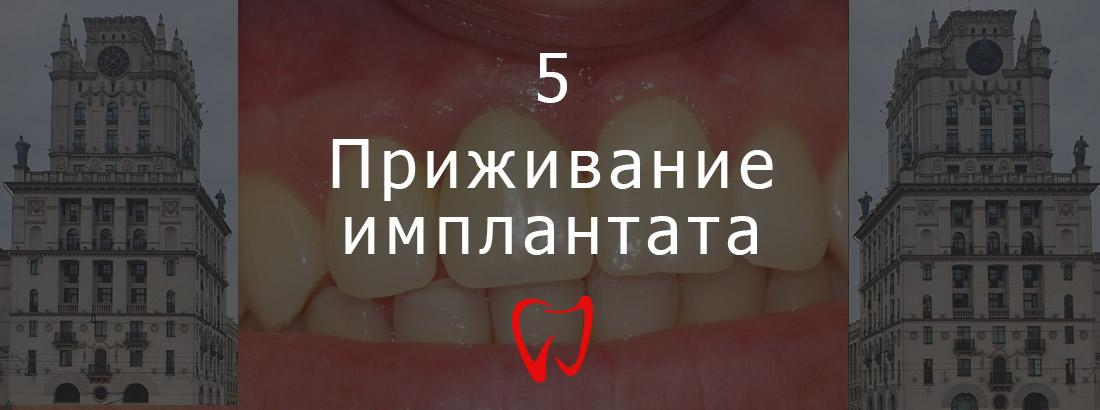 The fifth stage of dental implantation - implant engraftment
