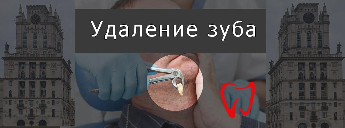 Пациент в кресле стоматолога, на переднем плане рука, держащая клещи с вырванным зубом.