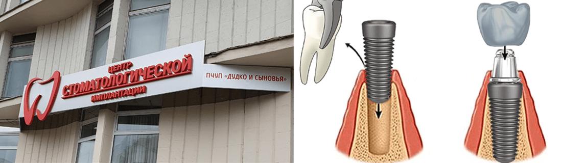 Один из самых быстрых способов восстановить утраченный зуб в Минске- одномоментная имплантация