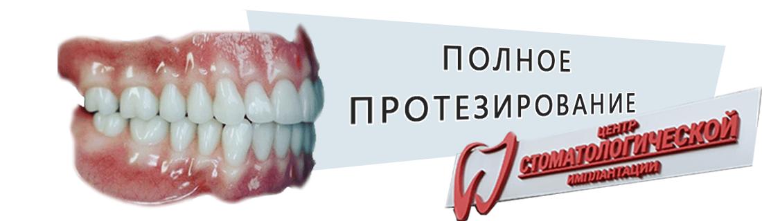 Имплантация всех зубов в Минской стоматологии Дудко и сыновья