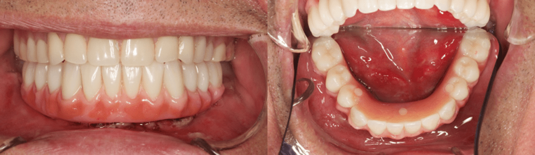 The result of the prosthetics operation on three implants according to the Nobel Biocare Trefoil procedure