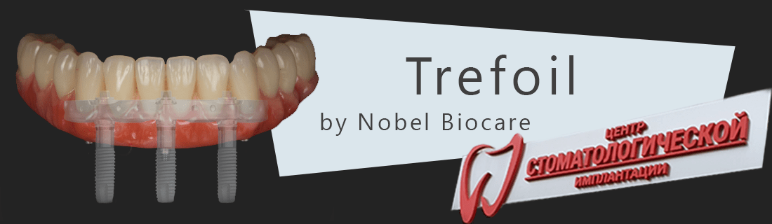 Prosthetics of the lower jaw according to the Trefoil protocol from Nobel Biocare at the Dudko & Sons clinic