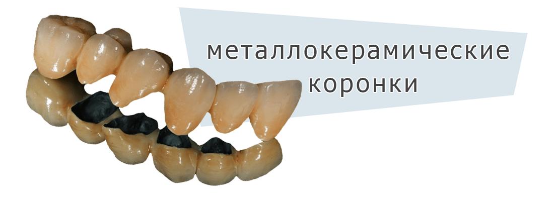 Einführungsfoto der Installation von Metallkeramikkronen in der Klinik Dudko and Sons