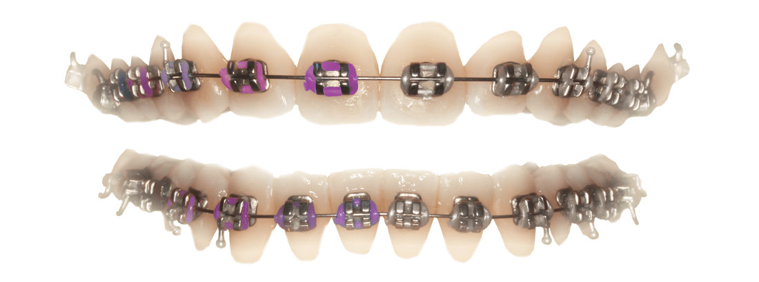 Dental Braces in the Minsk clinic Dudko and Sons