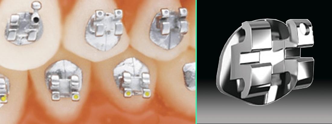 Self-ligating titanium braces Damon Titanium Orthos