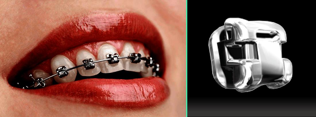 Self-Ligating Metal Braces Damon Q