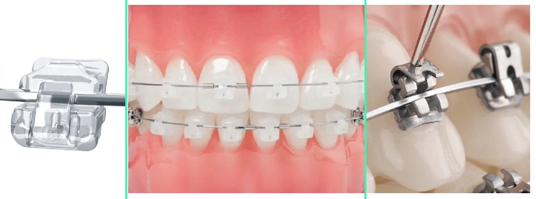 Damon self-ligating metal and sapphire braces