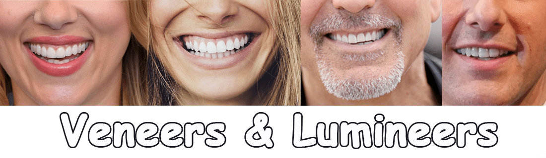 Intro Veneers und Lumineers