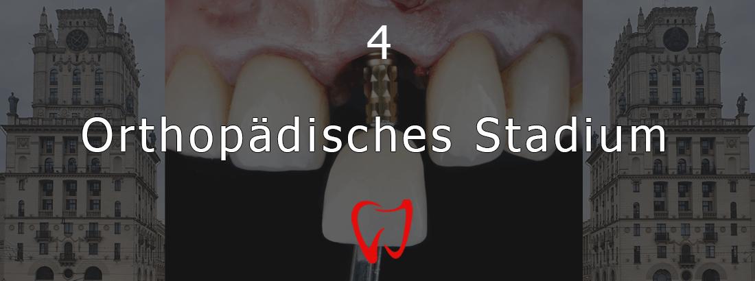 Die vierte Stufe der Zahnimplantation - Orthopädie