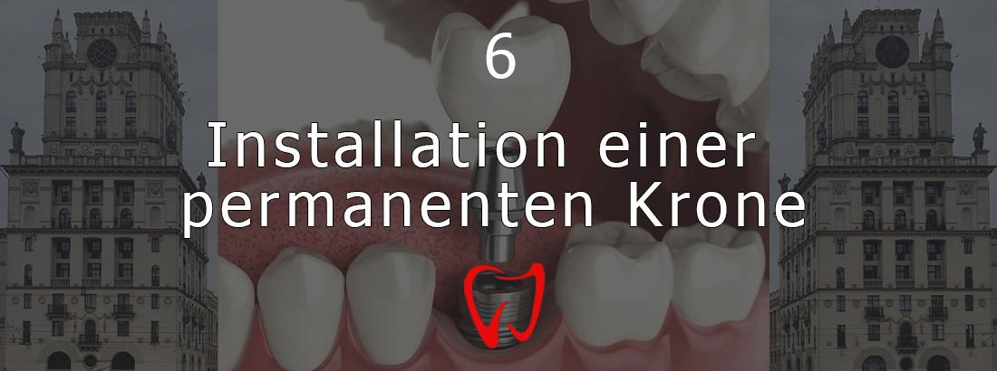 Sechste Stufe der Implantation - Installation von permanenten Kronen