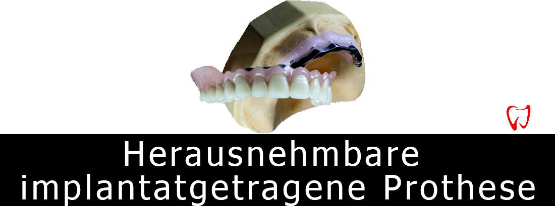 Einstufige Methode der Zahnimplantation durch Installation einer Wurzel unmittelbar nach der Entfernung des defekten Zahns