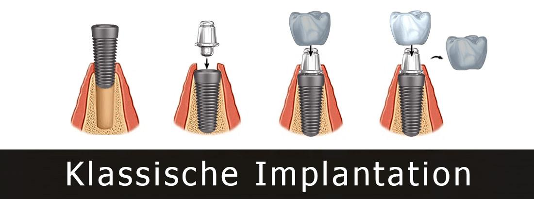 Klassische zweistufige Implantationsmethode durch sequentielle Platzierung der Wurzel, des Abutments, der provisorischen Krone und deren Ersatz durch eine permanente