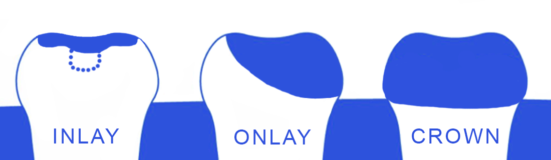 Distinguishing Crowns from INLAY and ONLAY