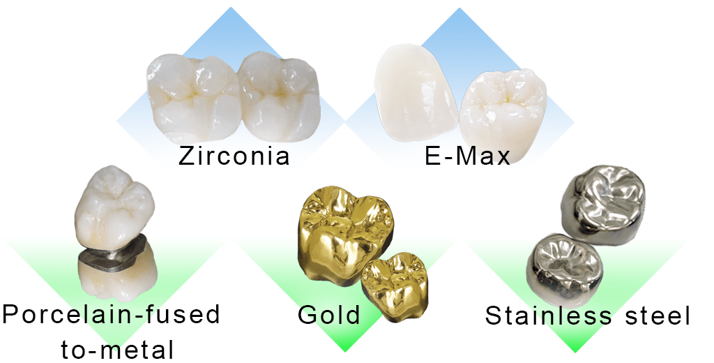 All dental crowns in one photo
