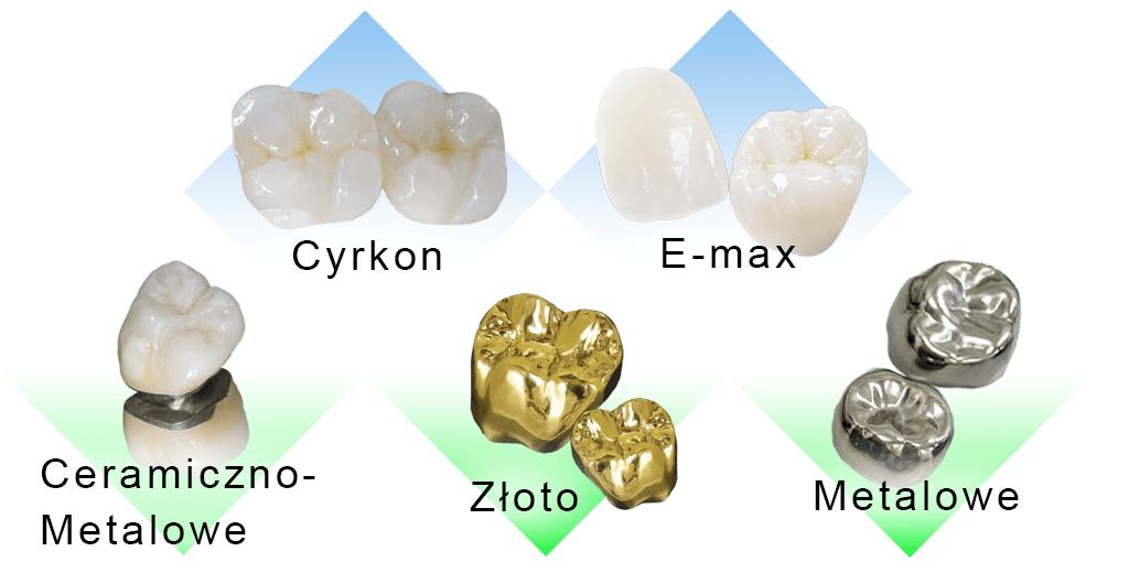 Wszystkie korony dentystyczne na jednym zdjęciu