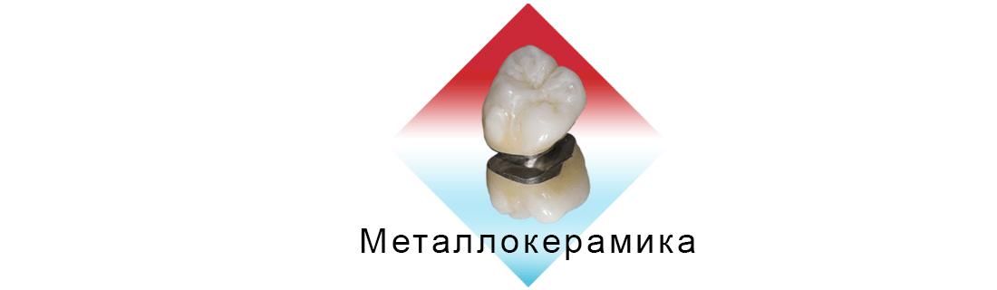 Коронка из металлокерамики вписанная в ромб на белом фоне