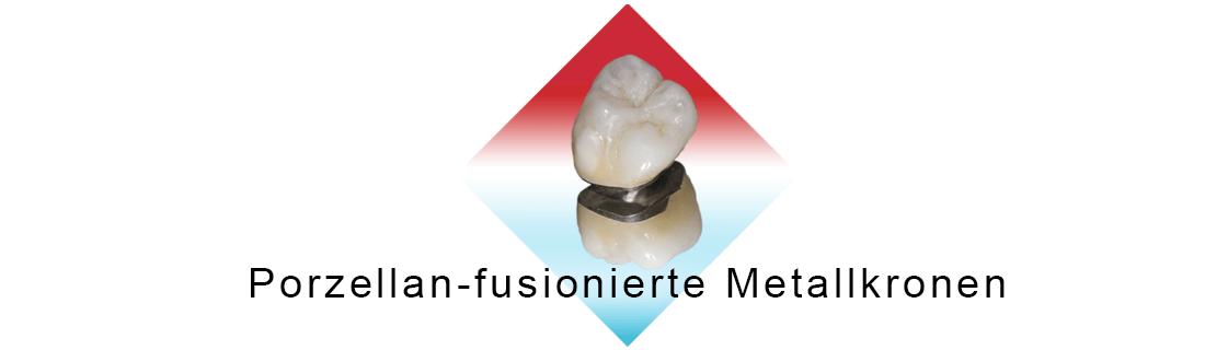 Metallkeramikkrone beschriftet in einer Raute auf einem weißen Hintergrund