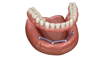 Bar-retained prosthesis on implants in Minsk dentistry Dudko and sons
