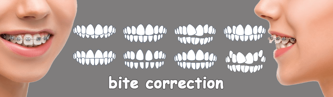 8 types of malocclusion