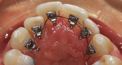 treatment of malocclusion with lingual braces