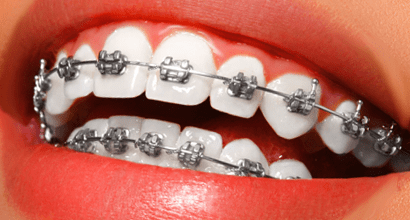 malocclusion treatment with metal braces