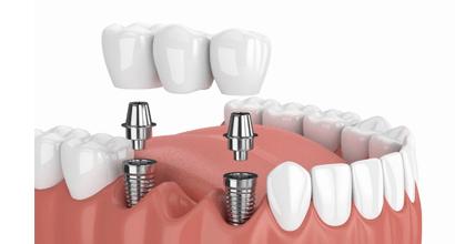 Dental bridges on implants in Minsk dentistry Dudko and sons