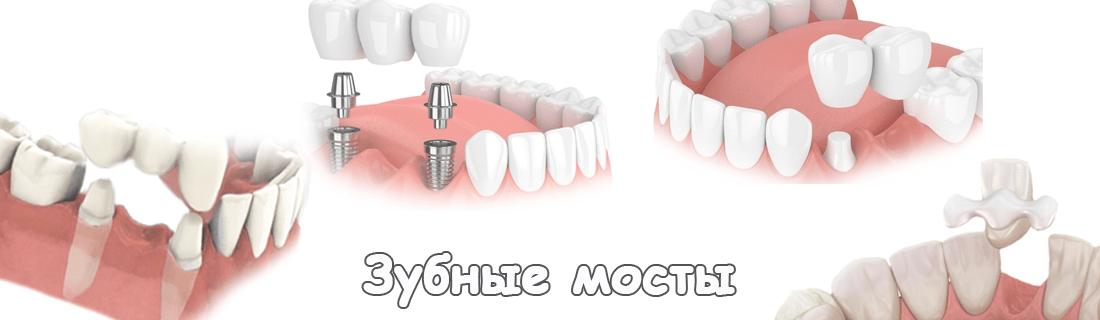 4 вида зубных мостов на одном фото