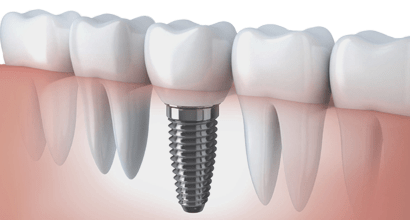 Crown on an implant in Minsk dentistry Dudko and sons