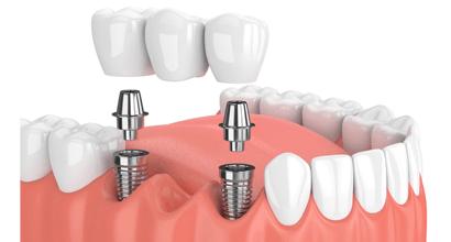 Зубной мост с опорой на импланты