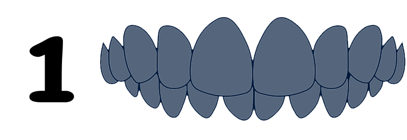 Overbite type of malocclusion