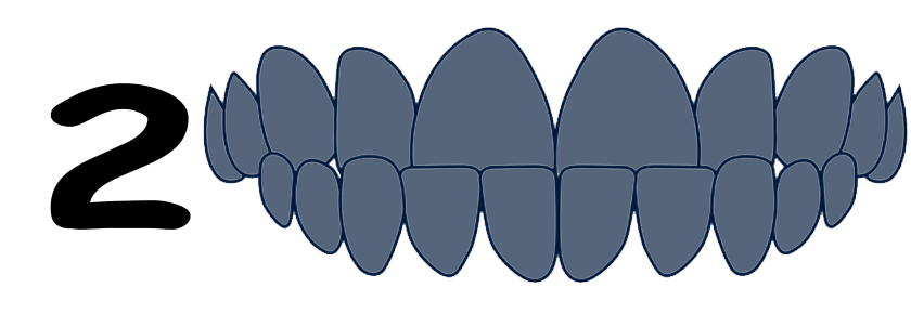 Underbite type of malocclusion