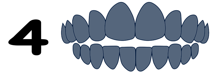 Open bite type of malocclusion