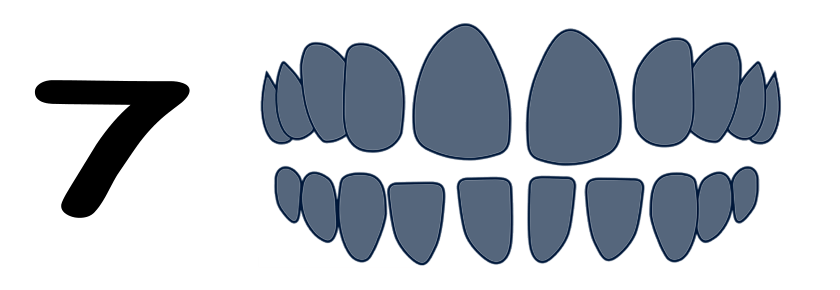 Spacing type of malocclusion